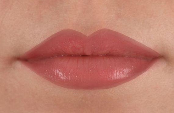 10-Fuller-Lips